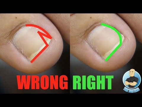 EASY DIY AT HOME TREATMENT FOR INGROWN TOENAILS USING INGROWN TOENAIL TOOL