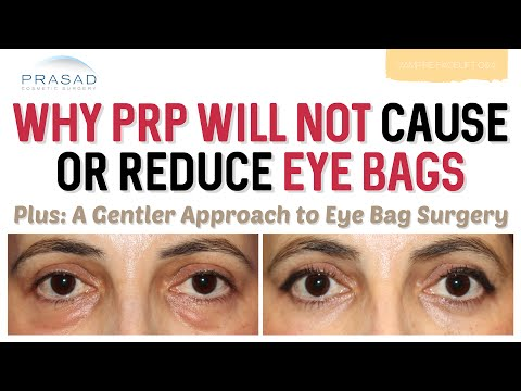 Why PRP Cannot Cause or Resolve Eye Bags, and a Gentler Approach to Eye Bag Surgery
