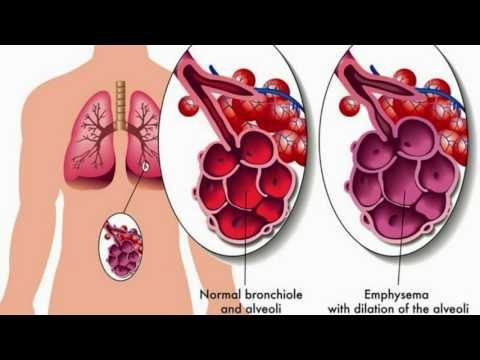 Difference Between Asthma and Bronchitis