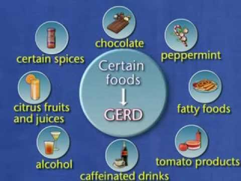 Factors that Contribute to GERD -- Dietary Factors