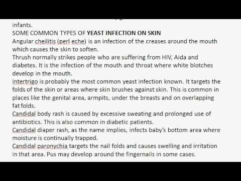 How to get rid of yeast infection on skin
