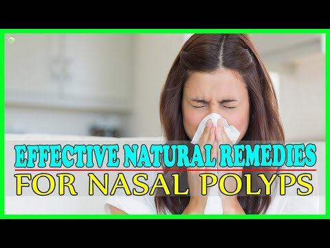 How To Cure Nasal Polyps Naturally At Home? - Effective Natural Remedies For Nasal Polyps