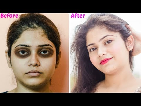 How to Remove Dark Circles Naturally | Get Rid Of Dark Circles | Get rid of Eye bags, Crow's Feet
