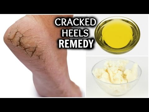 CRACKED HEELS HOME REMEDY │REMOVE DRY HEELS AT HOME FAST AND EASILY │HOW TO GET RID OF CRACKED FEET