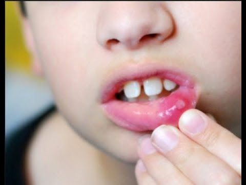 Effective Dua for  Mouth Ulcers and SPORTS -muh ke chale