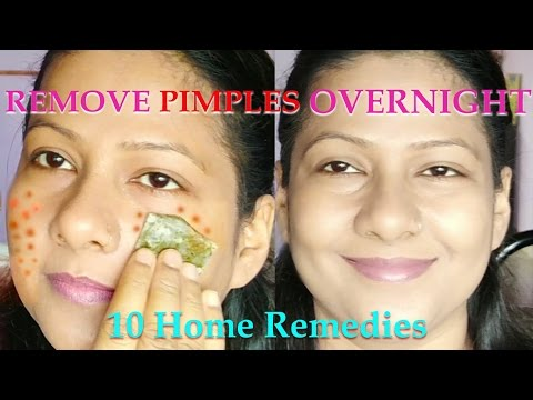 How to remove pimple marks in one day