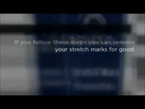 THE BEST Stretch Mark Removal FOUND   Revitol Stretch Mark Cream REALLY WORKS