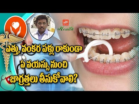 Precautions for Irregular Teeth Alignment | Tips To Take Care of Your Dental Health | YOYO TV Health