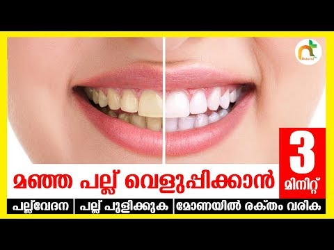 മഞ്ഞ പല്ലു വെളുപ്പിക്കാൻ  3 മിനിറ്റ്   Teeth Whitening at home in 3 minit