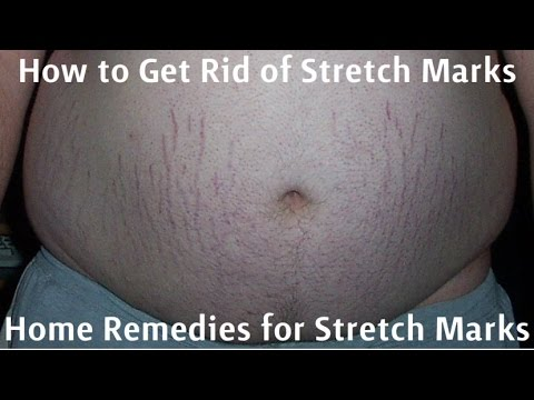 How to Get Rid of Stretch Marks - Home Remedies for Stretch Marks