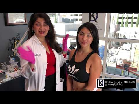 Sculptra Butt Injections with Marie Madoré