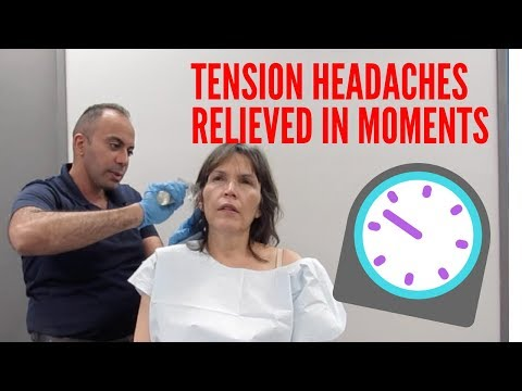 Tension Headaches Relieved in Minutes!