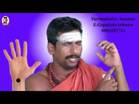 தூக்கமின்மைக்கு வர்மக்கலை வைத்தியம்/எஸ். கோபாலகிருஷ்ணன்+919894285755