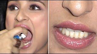 Parineeti Chopra Shows Off Her Dirty Yellow Teeth! OOPS SHE DID IT AGAIN…