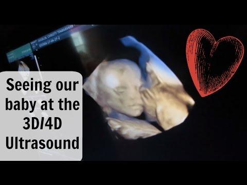 Our 3D 4D Ultrasound! (April 27,2017)