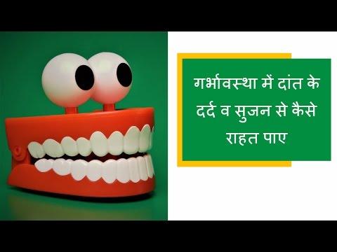 गर्भावस्था में दांत के दर्द व सुजन से राहत पाए/pain and bleeding  in teeth and gums during pregnancy