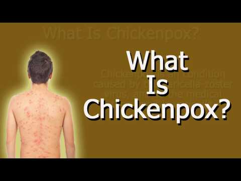 What Is Chickenpox?
