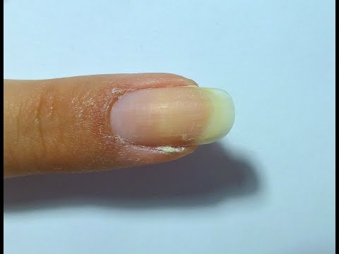 How to series - Get rid of a hangnail
