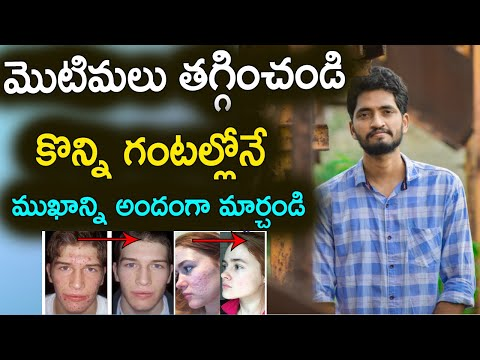 How To Remove a Pimple Overnight | In Telugu | Naveen Mullangi