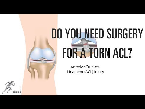 Does a non-athlete need surgery for a torn ACL?