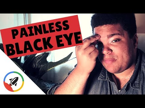 How To Give Yourself A Black Eye | No Pain!