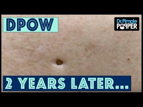 Flip it & Reverse it Blackhead Extraction / Dilated Pore of Winer