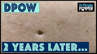 Harvesting Dilated Pores of Winer 2018