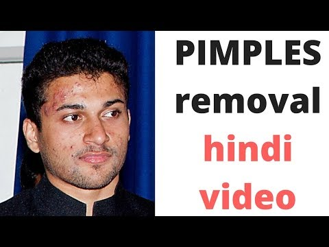 HINDI how to cure pimples for men | men skincare tips in hindi | pimples removal on face at home