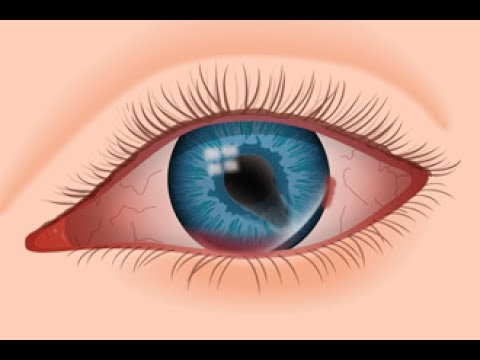 What Are Eye Floaters : Causes, Symptoms and Treatment Options For Eye Floaters