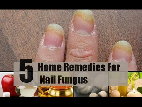 5 Home Remedies For Nail Fungus
