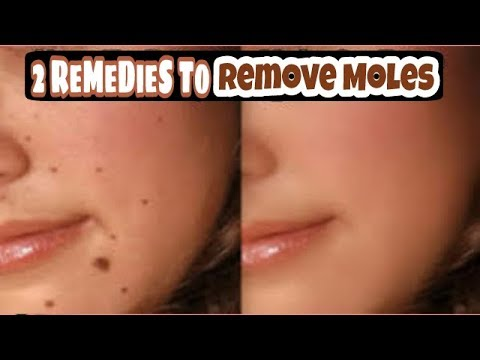 Mole Removal | How To Remove Moles On Face At Home | How To Get Rid Of Moles