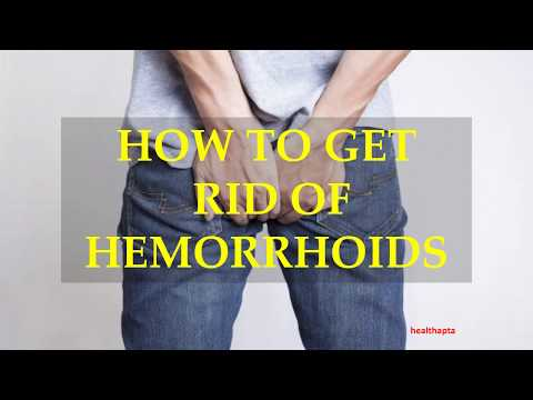 HOW TO GET RID OF HEMORRHOIDS
