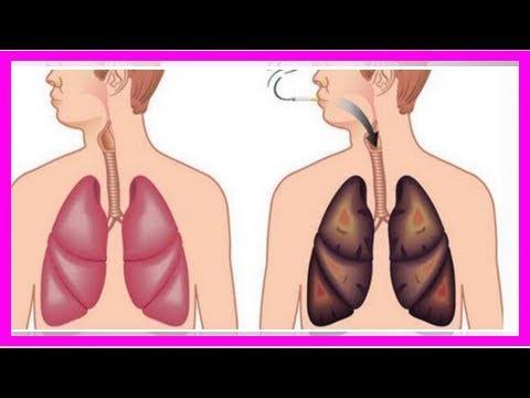 「吸煙的肺」在「戒煙」後可以恢復正常嗎?沒想到「戒煙後的肺」竟.......