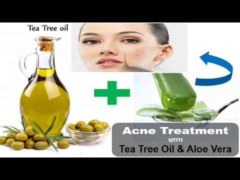 How to Use Tea Tree Oil with Aloe Vera for Acne -Seriously Works!How To Get Rid of Acne Scars?