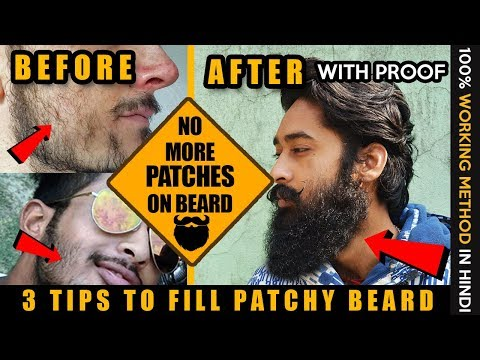 2018 How to Fill Patchy Beard  | Fill Patchy Beard with 100% Proof | Patchy beard fix in Hindi |