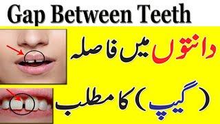 Meaning Of Gap Between Teeth In Urdu || Danto K Darmyan Faslay Ka Matlab || General Information
