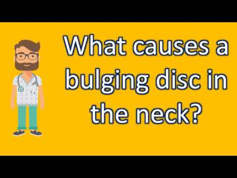 What causes a bulging disc in the neck ? | Health Channel