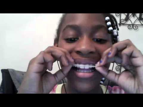 How to make Fake Braces With ONLY Rubber bands!