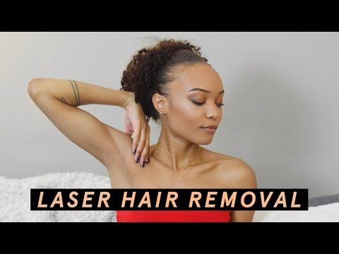 My LASER HAIR REMOVAL Experience | Alicia Fuller