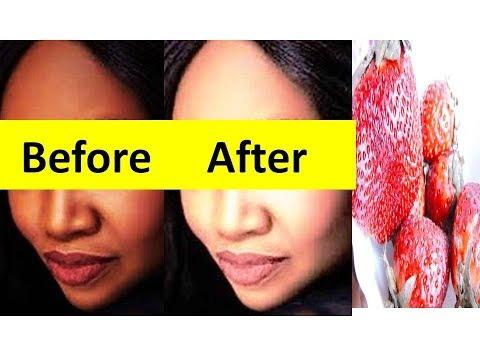 Rid of Blemishes Skin Pigmentation Skin Tan Skin by using Strawberry