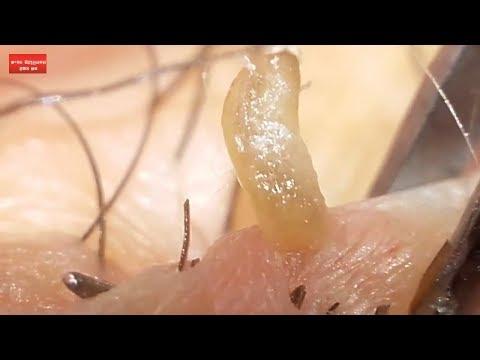 Big black clogged pore removal.
