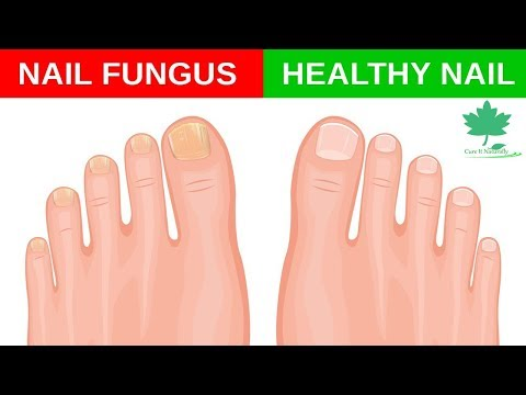 Home Remedies for Toe Fungus | Yellow Toenail Fungus | Nail Fungus Treatment | Cure It Naturally