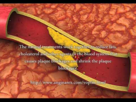 Artery Plaque Medicine   What Is The Artery Plaque Medicine