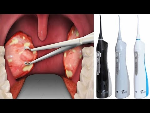 Naturally Remove Your Tonsil Stones Without Surgery - V 4 YOU
