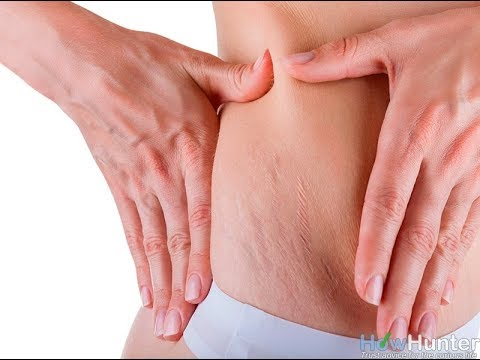 How to Get Rid of Stretch Marks Fast And Easy - What can you do?