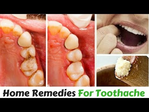 Instant Relief From toothache Home Remedies | Natural Ways To Help a Toothache | Natural Health Care