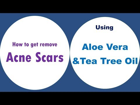 How To Get Remove Acne Scars Over Night With Aloe Vera And Tea Tree Oil