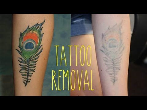 How to Remove a Tattoo - The Most Effective Treatment