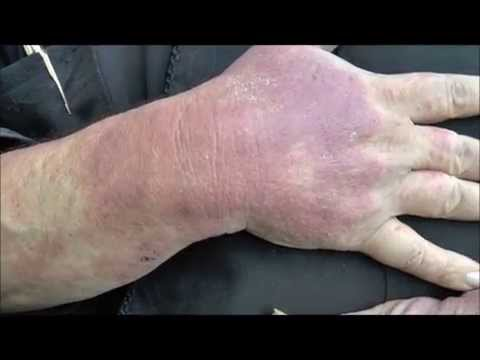 A case of contact Dermatitis before and after treatment
