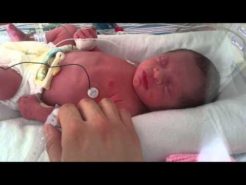 Preemie baby at 33 weeks